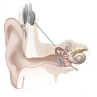 Cochlear Implant Recall Lawsuit