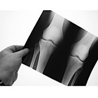 DePuy Knee Replacement Recall Lawsuit