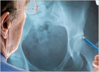 Proton Pump Inhibitor Bone Fracture Lawsuit