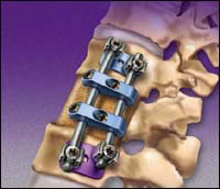 Medtronic® devices have been widely used off-label during spine