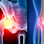 Variations in Hip, Knee Replacement Complications