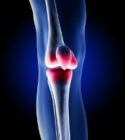 Zimmer Knee replacement Lawsuit