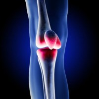 Zimmer NexGen Knee Lawsuit